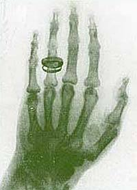 1940s Dr. Scholl's Fluoroscopic Shoe X-Ray